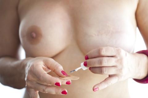 Custom-Made Prosthetic Nipple