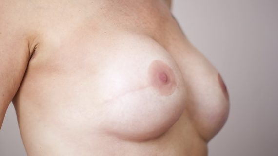 Natural Style Prosthetic Nipple